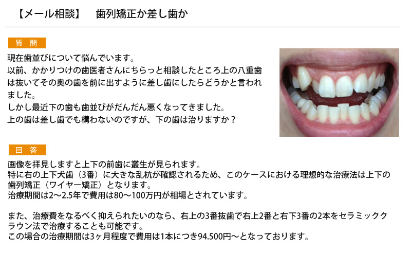 (写真)歯列矯正か差し歯か