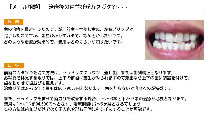 (写真)治療後の歯並びがガタガタで・・・