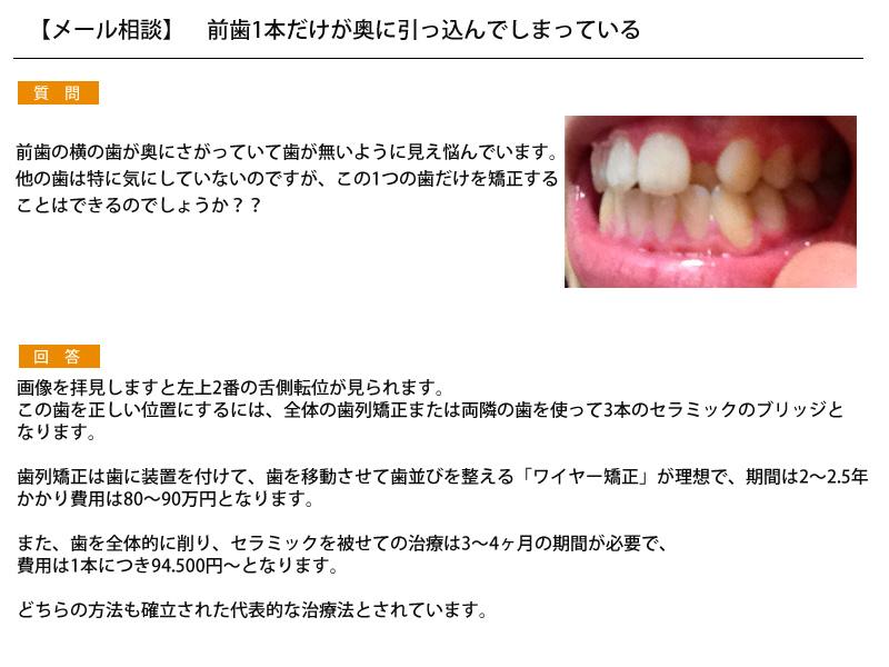 (写真)前歯1本だけが奥に引っ込んでしまっている