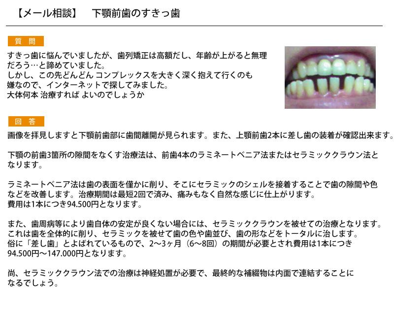 (写真)下顎前歯のすきっ歯