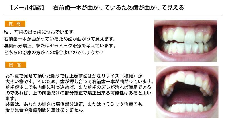 右前歯一本が曲がっているため歯が曲がって見える