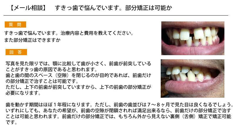 すきっ歯で悩んでいます。部分矯正は可能か