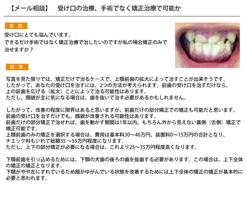 受け口の治療、手術でなく矯正治療で可能か