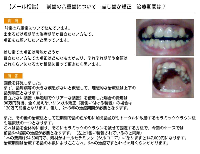 (写真) 前歯の八重歯について 差し歯か矯正 治療期間は?