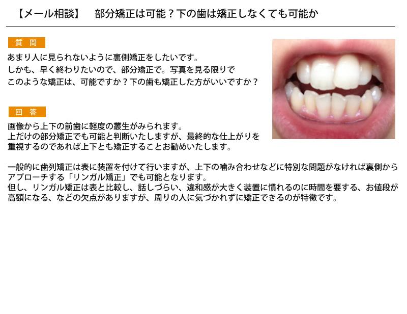 (写真)部分矯正は可能?下の歯は矯正しなくても可能か