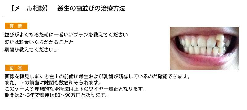 (写真)叢生の歯並びの治療方法