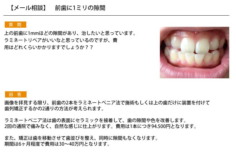 (写真)前歯に1ミリの隙間