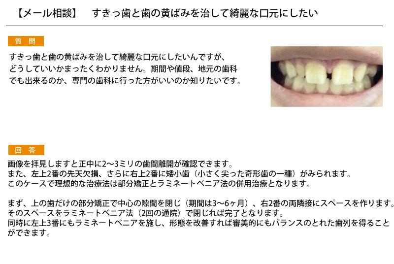 (写真)すきっ歯と歯の黄ばみを治して綺麗な口元にしたい