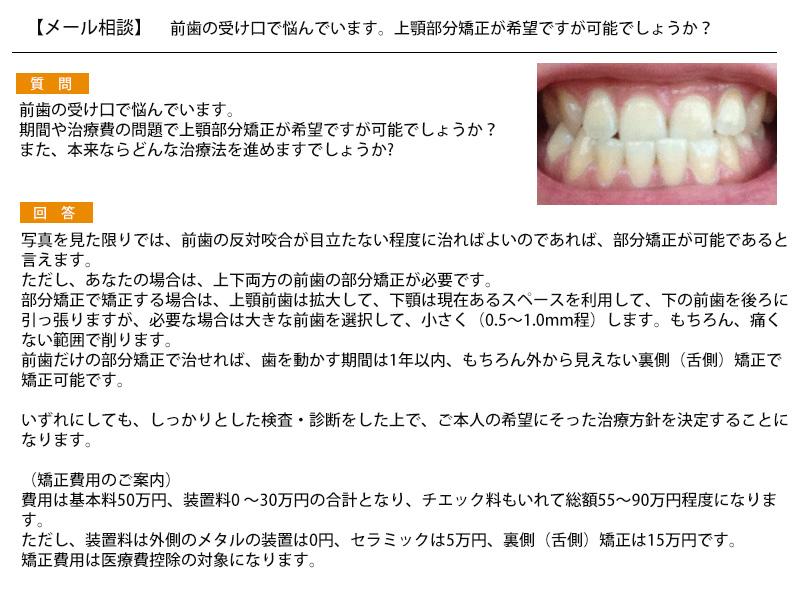 前歯の受け口で悩んでいます。上顎部分矯正が希望ですが可能でしょうか?