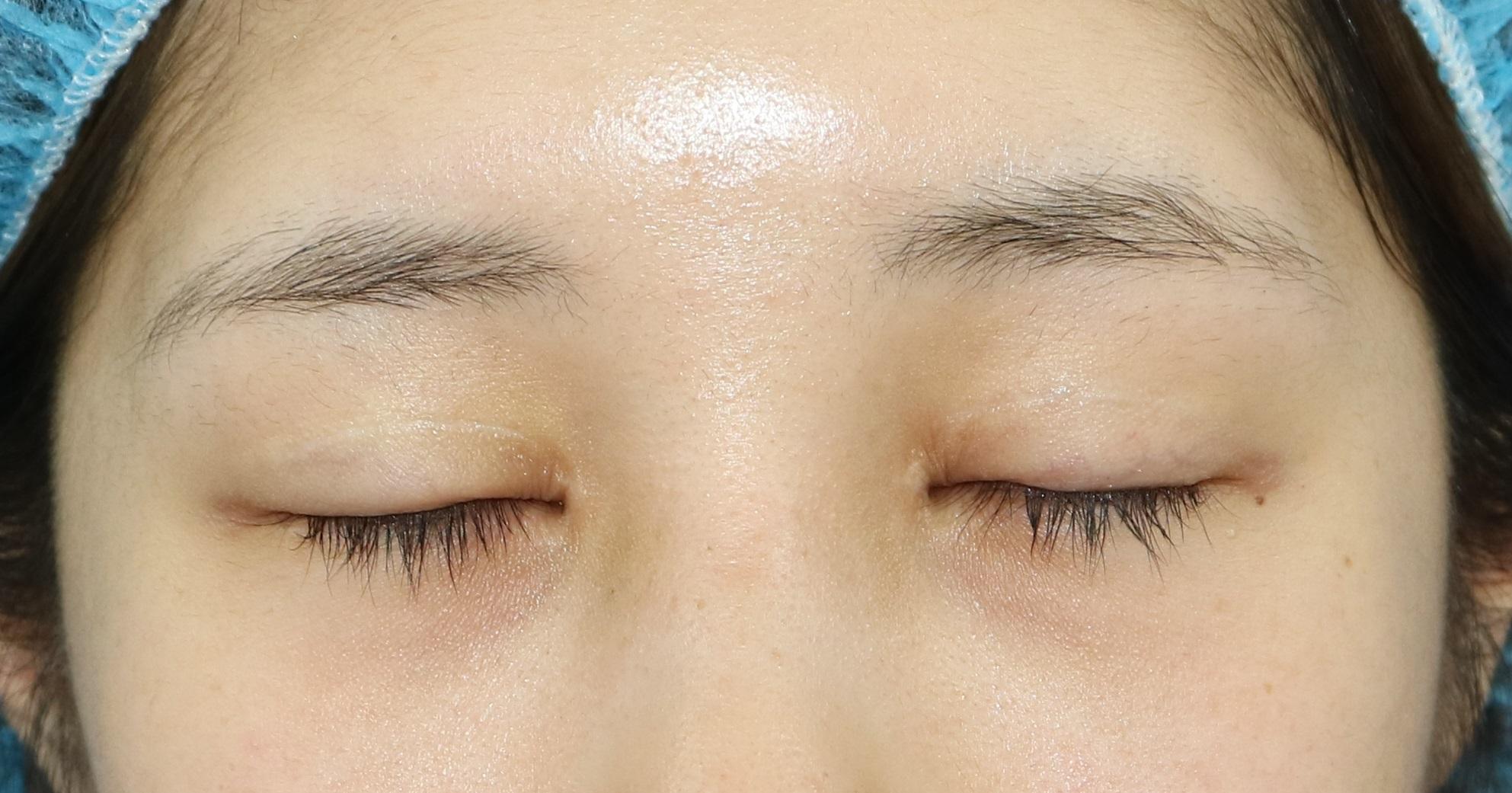 眼瞼下垂手術の修正は、悪化する??!