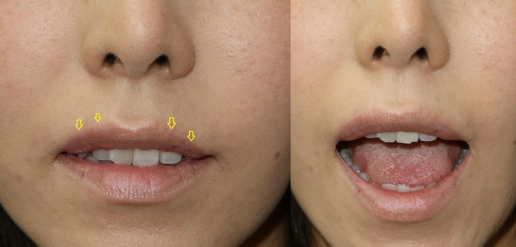 大口明けても大丈夫ですか?上口唇挙上術の術後。