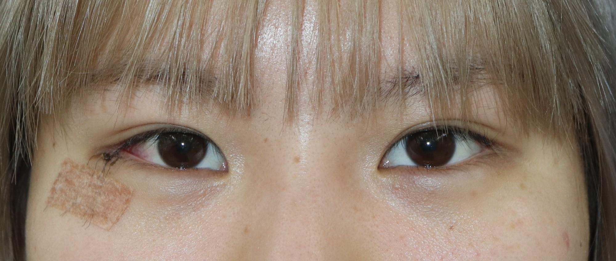 目尻切開修正術の腫れ方
