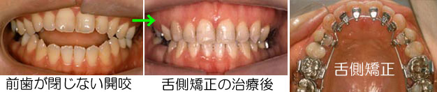 口が空いたままの開咬(オープンバイト)舌側矯正では良い結果を出せないと言われました