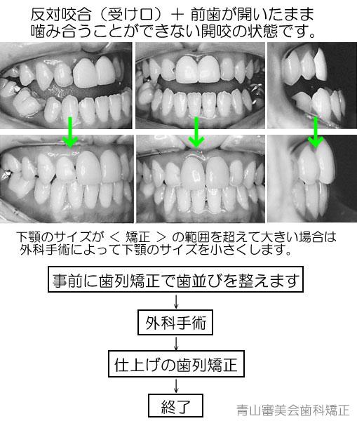 外科手術を前提とした、受け口(反対咬合)の歯列矯正