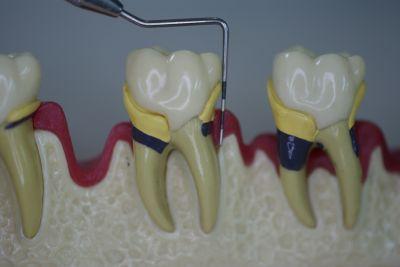 歯周病について その4