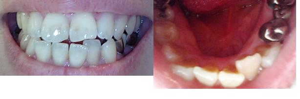 (写真相談) 元々ある隙間を利用し前歯の歯並びを整え