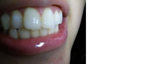 (写真相談)上前歯に小さな白い斑点のような白い部分が