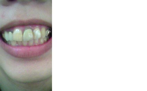 (写真相談) 差し歯は歯茎の所が黒ずみ、歯も石灰化し