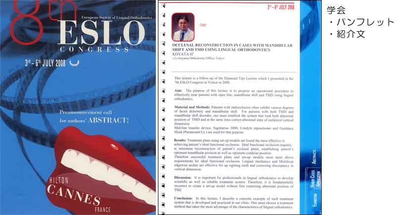 ヨーロッパ舌側矯正学会 (2008 ESLO)