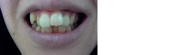 (写真相談)前歯の歯並びをセラミッククラウンで費用は