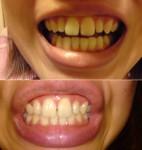 (写真)成人した頃から徐々に上の前歯の隙間が空き審美歯科で