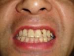 写真)歯の隙間をうめてた白いセメントの表面がはがれて