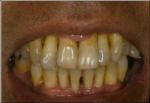 失った歯をそのままにしておくと・・・