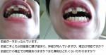 上の前歯2本が欠けて。ラミネートベニアで直せない状況