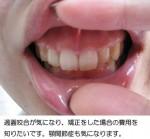 過蓋咬合、顎関節症が気になり、矯正をした場合の費用を知