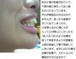 (写真)上顎の前歯が出ていて、下顎の歯に被さって出っ歯みたい