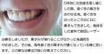 5年前に前歯を差し歯に。日に日に歯ぐきの黒ずみ。治療法?