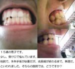 (写真)受け口の外科手術は成長期が終わるまで無理? (15歳男