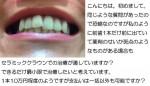 写真) 前歯1本が出て、薬剤のせいか 斑点が。セラミッククラウン