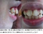 (写真)歯並びが悪くセラミックでも出っ歯が治りますか? 費用は?