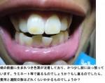 写真) 娘の前歯に生まれつき色素が沈着、かつ少し前に出っ張って