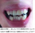 写真) 歯並びが悪く治したい、費用40万円で金属でみえない治療は
