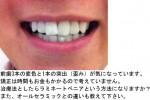 前歯の変色と1本の突出、歪みが気になりラミネートベニア