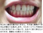 (写真)二番目の歯がなくその為に隙間が