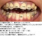 (写真)差し歯が混ぜ混ぜ、非常に酷い歯の状態。上の歯6本を美し