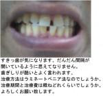 (写真)すきっ歯が気になり、だんだん間隔が開いて。歯ぎしりも気