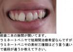 (写真)前歯二本の隙間が開いて。ラミネートベニヤの値段の違いを