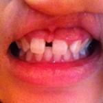 (写真)すきっ歯で悩んでいます。生まれつき上の歯が1本足りない