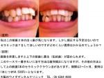 (写真)前歯2本の出っ歯が気になります。セラミック法の費用は