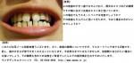 (写真)上の前歯のすきっ歯、ラミネートベニア可能?下の前歯も