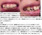 (写真)右前歯の横の変な向きに生えてる歯を綺麗に。抜歯は避け