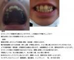 (写真)セラミックで前歯4本を整えたい。矯正は考えておらず短期
