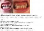 (写真)上顎の前歯が3本が内側に入って。年齢を重ね、歯の色な