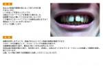 (写真)上の前歯の隙間が気になって笑うのを正直ためらいます