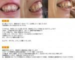 (写真)歯茎が出ているせい?で、口が閉じにくい