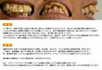 (写真)57歳です、出っ歯の歯科矯正を勧められているが・・・